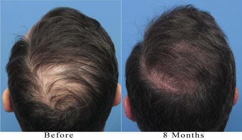 NeoGraft Hair Restoration Gallery - Patient 58214366 - Image 3