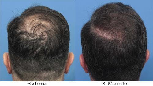 NeoGraft Hair Restoration Gallery - Patient 58214366 - Image 4