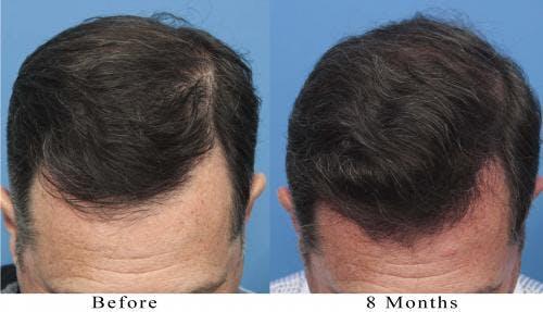 NeoGraft Hair Restoration Gallery - Patient 58214366 - Image 5