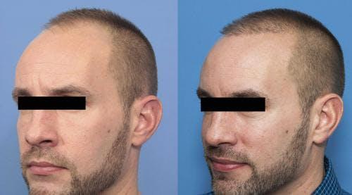 NeoGraft Hair Restoration Gallery - Patient 58214369 - Image 1