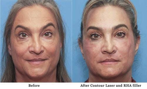 Contour TRL Laser Gallery - Patient 58214370 - Image 1