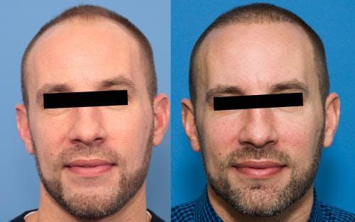 NeoGraft Hair Restoration Gallery - Patient 58214369 - Image 2