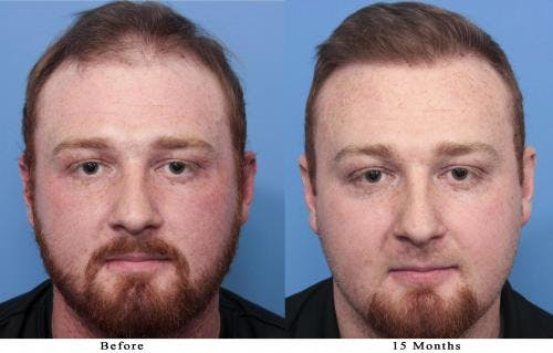 NeoGraft Hair Restoration Gallery - Patient 58214371 - Image 1