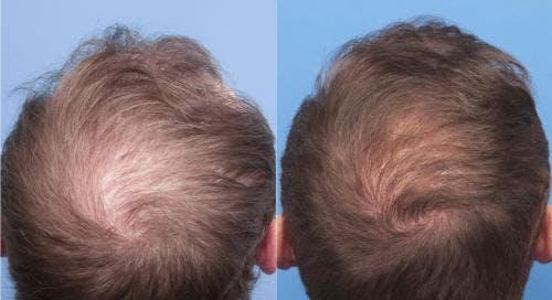 NeoGraft Hair Restoration Gallery - Patient 58214371 - Image 5
