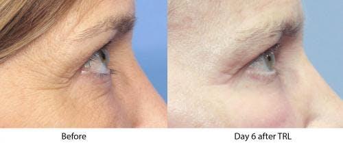Contour TRL Laser Gallery - Patient 58214387 - Image 1