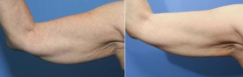 Arms Gallery - Patient 58214400 - Image 1