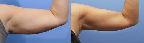 Arms Gallery - Patient 58214402 - Image 1