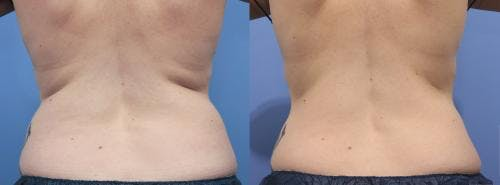 Body Gallery - Patient 58214414 - Image 2