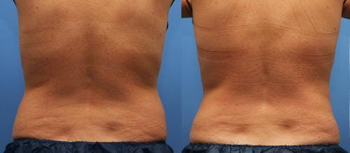 Body Gallery - Patient 58214423 - Image 5