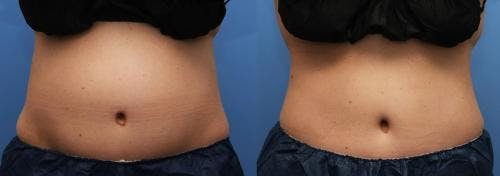 Body Gallery - Patient 58214424 - Image 1