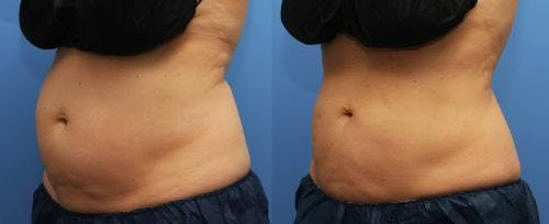 Body Gallery - Patient 58214427 - Image 1