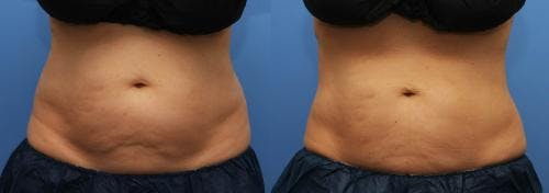 Body Gallery - Patient 58214427 - Image 2