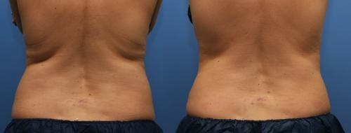 Body Gallery - Patient 58214427 - Image 3