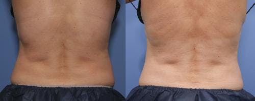 Body Gallery - Patient 58214433 - Image 3