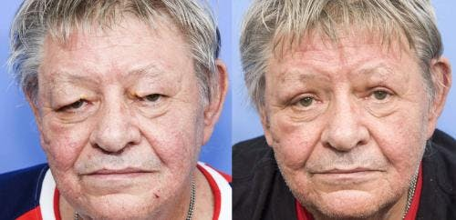 Eyelid Surgery Gallery - Patient 58216458 - Image 1