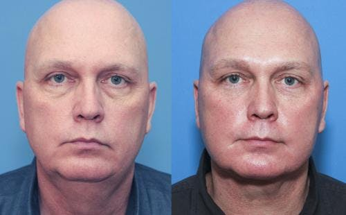 Face Lift Gallery - Patient 58216929 - Image 1