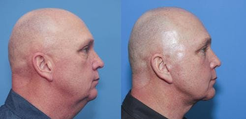 Face Lift Gallery - Patient 58216929 - Image 2
