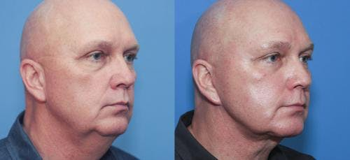 Face Lift Gallery - Patient 58216929 - Image 3