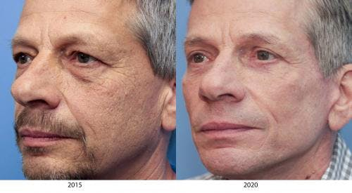 Face Lift Gallery - Patient 58217402 - Image 1