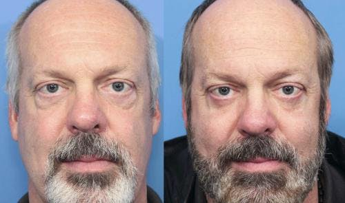 Eyelid Surgery Gallery - Patient 58217401 - Image 1