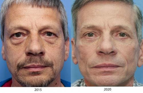 Face Lift Gallery - Patient 58217402 - Image 2