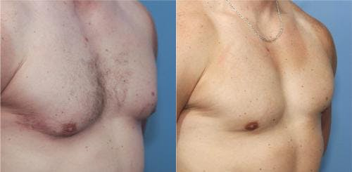 Male Breast Reduction Gallery - Patient 58217405 - Image 1