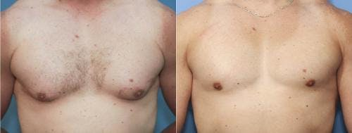 Male Breast Reduction Gallery - Patient 58217405 - Image 2