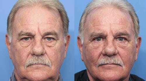 Eyelid Surgery Gallery - Patient 58217404 - Image 1