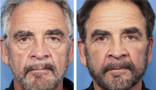 Face Lift Gallery - Patient 58217896 - Image 1