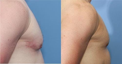 Male Breast Reduction Gallery - Patient 58217405 - Image 3