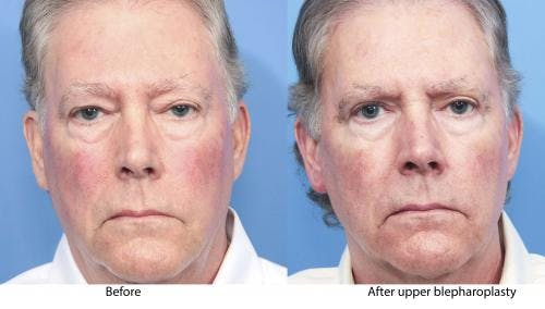 Eyelid Surgery Gallery - Patient 58217894 - Image 1