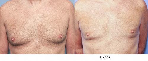 Male Breast Reduction Gallery - Patient 58217898 - Image 1