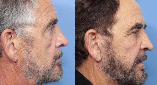 Face Lift Gallery - Patient 58217896 - Image 3