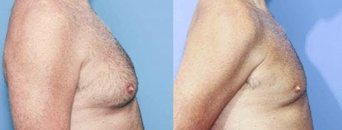 Male Breast Reduction Gallery - Patient 58217898 - Image 2
