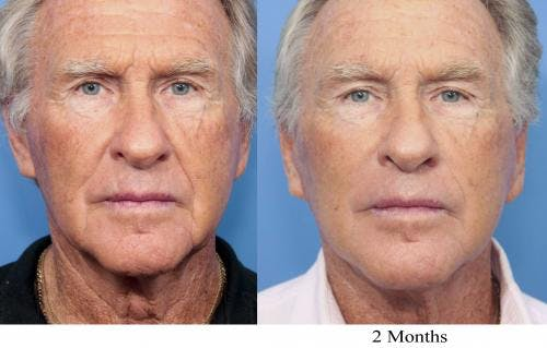 Face Lift Gallery - Patient 58218363 - Image 1