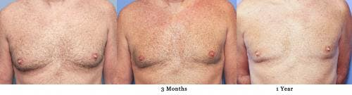 Male Breast Reduction Gallery - Patient 58217898 - Image 3