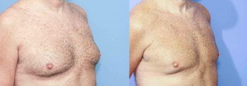 Male Breast Reduction Gallery - Patient 58217898 - Image 4