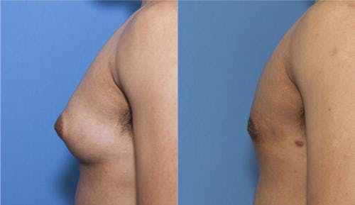 Male Breast Reduction Gallery - Patient 58218830 - Image 1