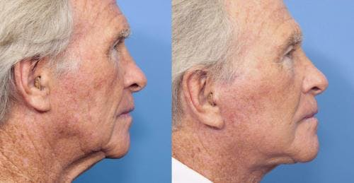 Face Lift Gallery - Patient 58218363 - Image 3