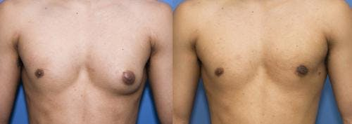 Male Breast Reduction Gallery - Patient 58218830 - Image 2