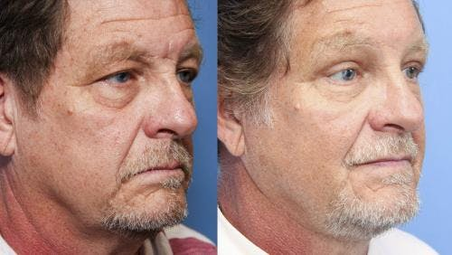 Face Lift Gallery - Patient 58218832 - Image 1