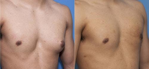 Male Breast Reduction Gallery - Patient 58218830 - Image 3
