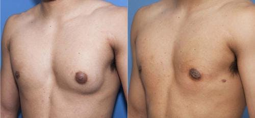 Male Breast Reduction Gallery - Patient 58218830 - Image 4