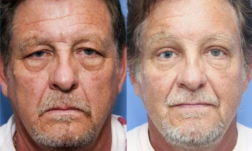 Face Lift Gallery - Patient 58218832 - Image 3