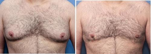 Male Breast Reduction Gallery - Patient 58219297 - Image 1