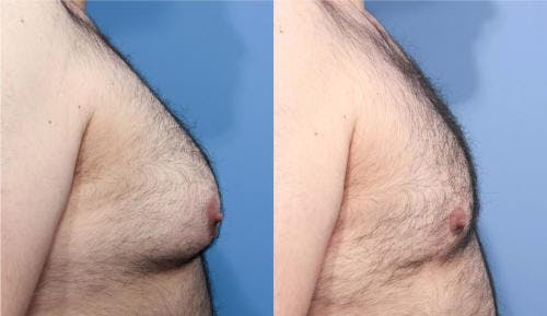 Male Breast Reduction Gallery - Patient 58219297 - Image 2