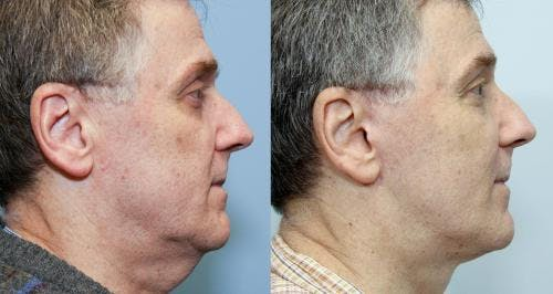 Face Lift Gallery - Patient 58219299 - Image 2