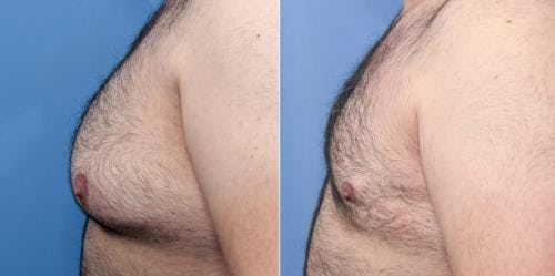 Male Breast Reduction Gallery - Patient 58219297 - Image 3