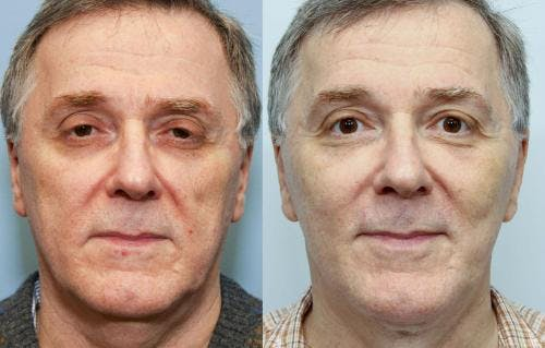 Face Lift Gallery - Patient 58219299 - Image 3