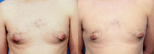 Male Breast Reduction Gallery - Patient 58219300 - Image 1